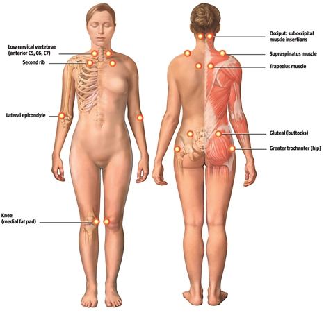 Diagram of trigger points used in Fibromyalgia Diagnosis at Avicenna Acupuncture clinic in Denver